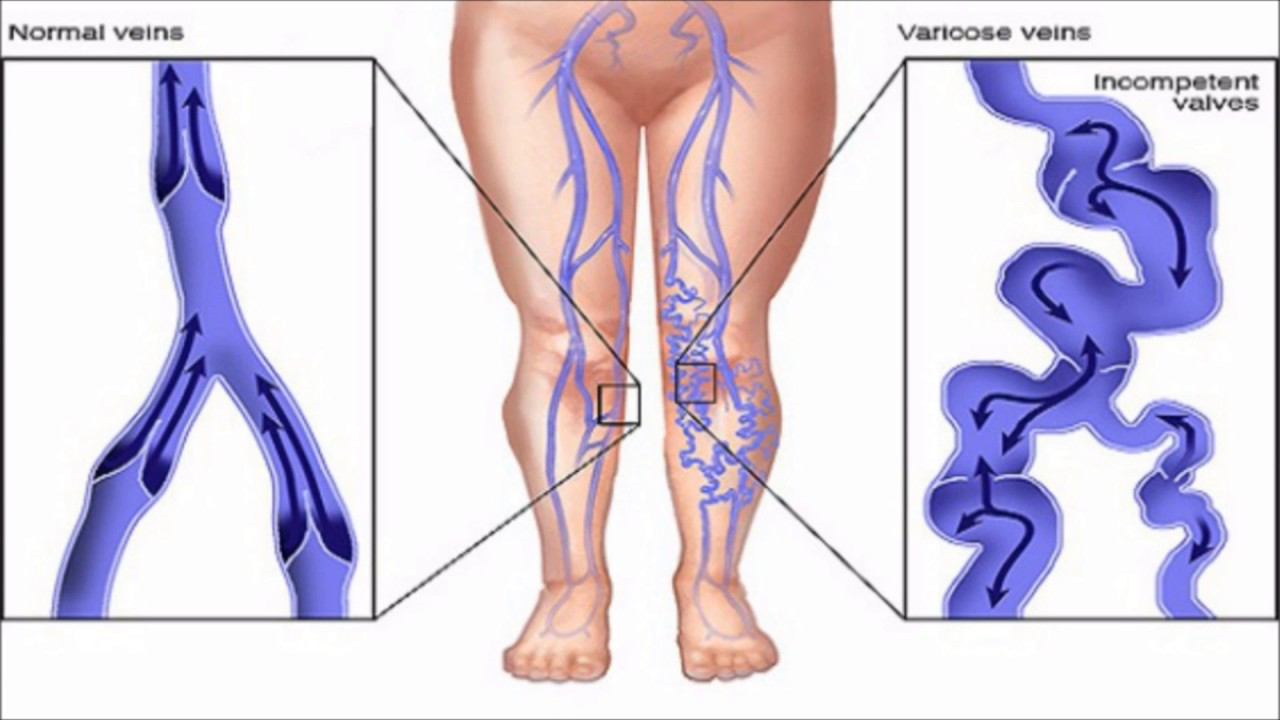GET RID OF VARICOSE VEINS AT HOME - YouTube