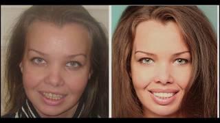 Эстетическая стоматология отзыв.  Поставим виниры и люминиры на зубы в Москве