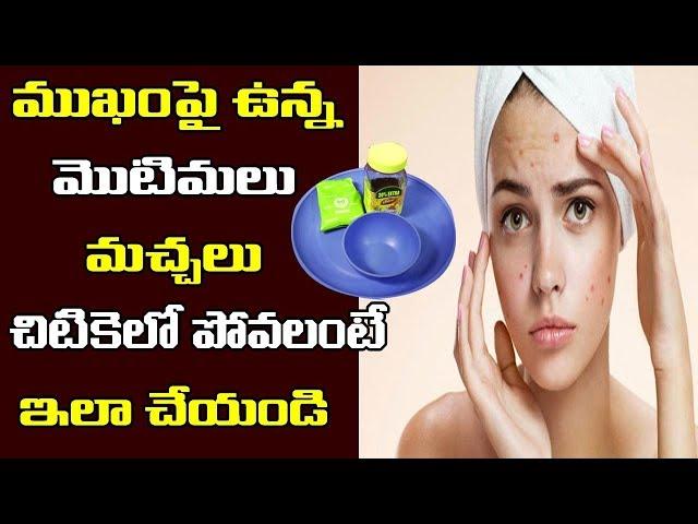 ముఖం పై మొటిమలు , మచ్చలు పోవాలంటే | How To Remove Pimples Overnight | PDTV Health and Beauty Tips