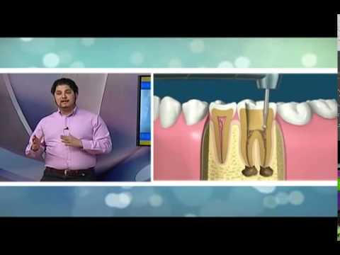 DOLOR DENTAL Y ENDODONCIA (MANEJO ACTUAL )