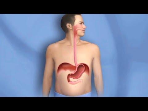 Отрыжка – причины отрыжки после еды, частая отрыжка у