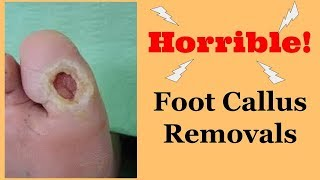 Horrific Foot Callus Removal