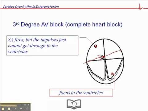 Ecg 3rd degree av block youtube ccuart Choice Image
