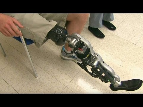 bionic limbs 020110 bionic legs, i-limbs, and other super human prostheses you'll envy save your tears for tiny tim a boom in sophisticated prostheses has created a most unlikely by-product: envy.