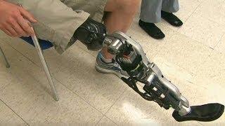 Bionic leg can 'read' brain signals to walk