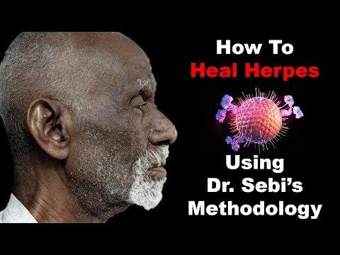 How To Heal Herpes - Using Dr. Sebi's Methodology