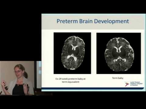 Neurodevelopment of Preterm Babies