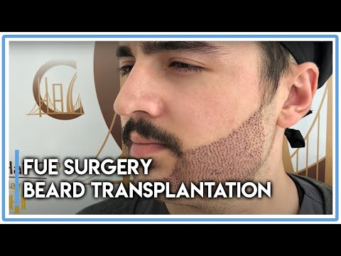 FUE Surgery: Beard Transplantation in Hair of Istanbul [Great Results!]