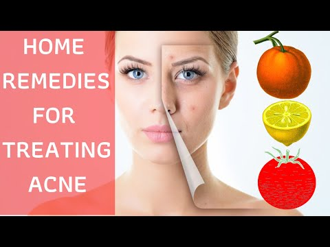 Home Remedies for Acne Scars & Dark Spots Removal on Face