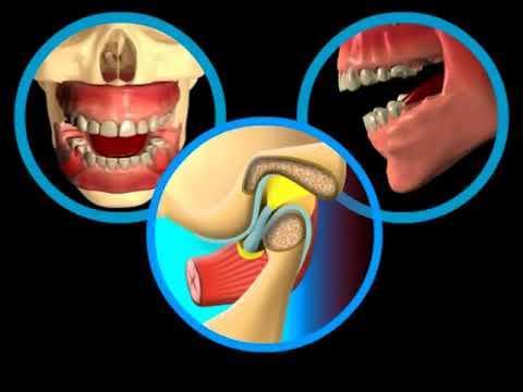 Temporomandibulární (čelistní, žvýkací) kloub – jeho poruchy a problémy   byroncaspergolf.com