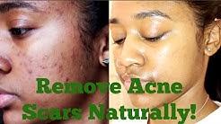 hqdefault - Eucalyptus Oil For Acne Reviews