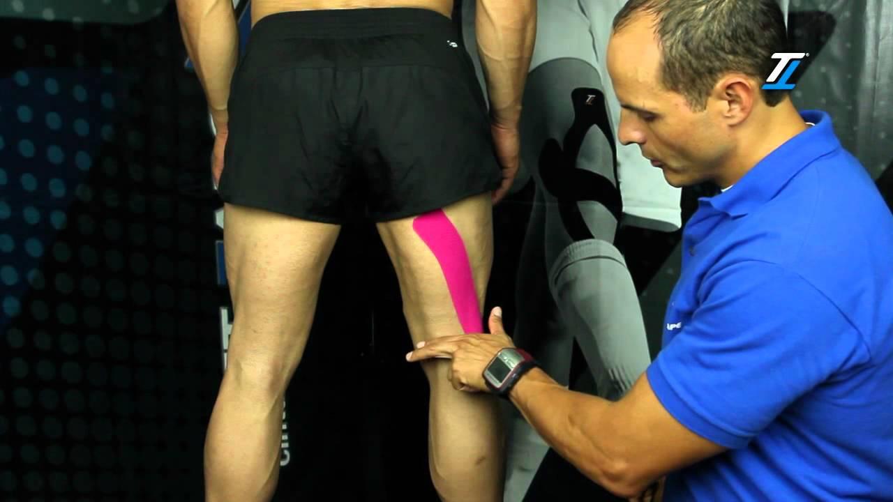 Lesion tendon del biceps crural