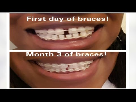 #7 My Braces Journey - Mini Braces update   GAPS CLOSING ...
