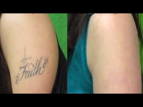 Tattoo Removal Los Angeles - Los Angeles Laser Tattoo Removal - YouTube