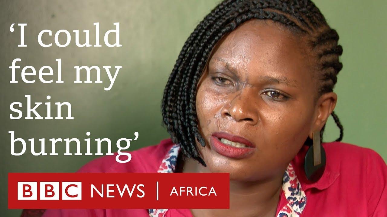 Ugandan acid attack survivors speak out - BBC Africa