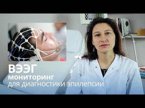 Видео ЭЭГ диагностика эпилепсии