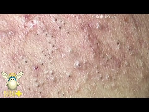 Forehead Blackheads, Cystic Acne And Pimples Extraction On ...
