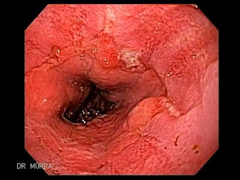 endoscopy of mallory-weiss tears in a 19 year--old man - youtube, Skeleton