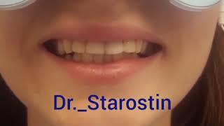 Виниры стоматология АССА
