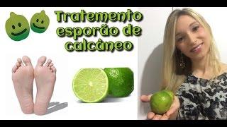 Tratamento caseiro para esporão de calcâneo utilizando a casca do limão