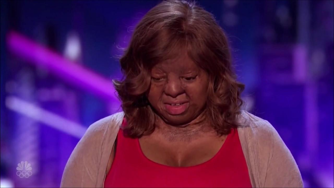 Americas got talent 2017 plane crash - Kechi Miracle Plane Crash Survivor Pours Her Heart Out On Stage America S Got Talent 2017