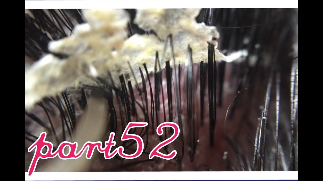 フケ【part52】巨大です。毛穴た...