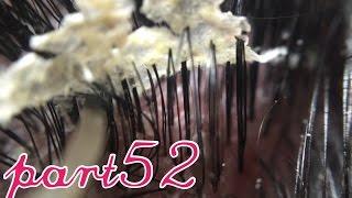 フケ【part52】巨大です。毛穴たっぷりです。満足です。BIG!dandruff52 thumbnail