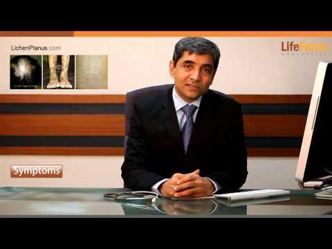 Symptoms of Lichen Planus explained by Dr Rajesh Shah, MD