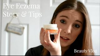 Eye Eczema Help | My Story + My Miracle Cream | Lux Life