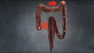 Entrada® overtube:  sigmoid loop animation