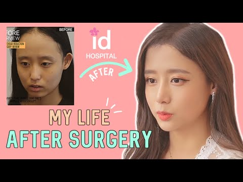 Forehead Reduction L Hairline Lowering Surgery Review At ID Hospital Korea