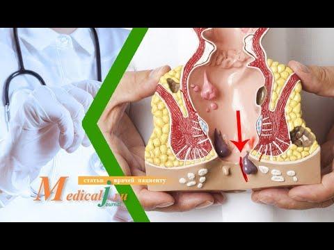 Анальная трещина. Какие симптомы и как лечить?