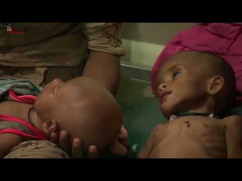 Aid agencies : up to 12,000 Rohingya children are at risk of dying of malnutrition