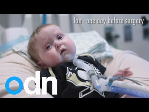 Three toddlers' lives saved by breakthrough medical 3D printing