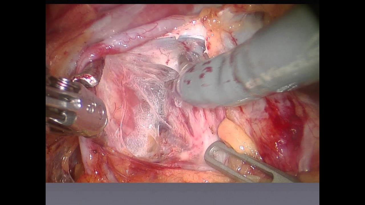 Robotic Assisted Radical Prostatectomy Lessons Learned After