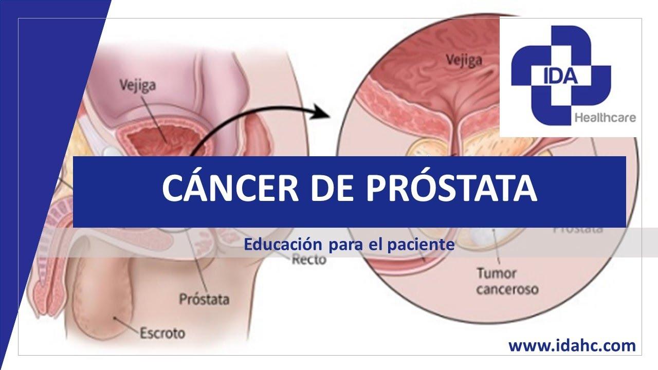 prostata wiki pl