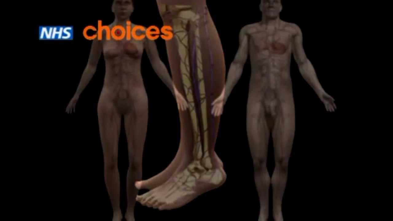 video de operare varicose picior