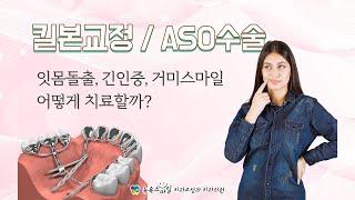 킬본교정 ASO수술 - 잇몸돌출, 긴인중, 거미스마일 …