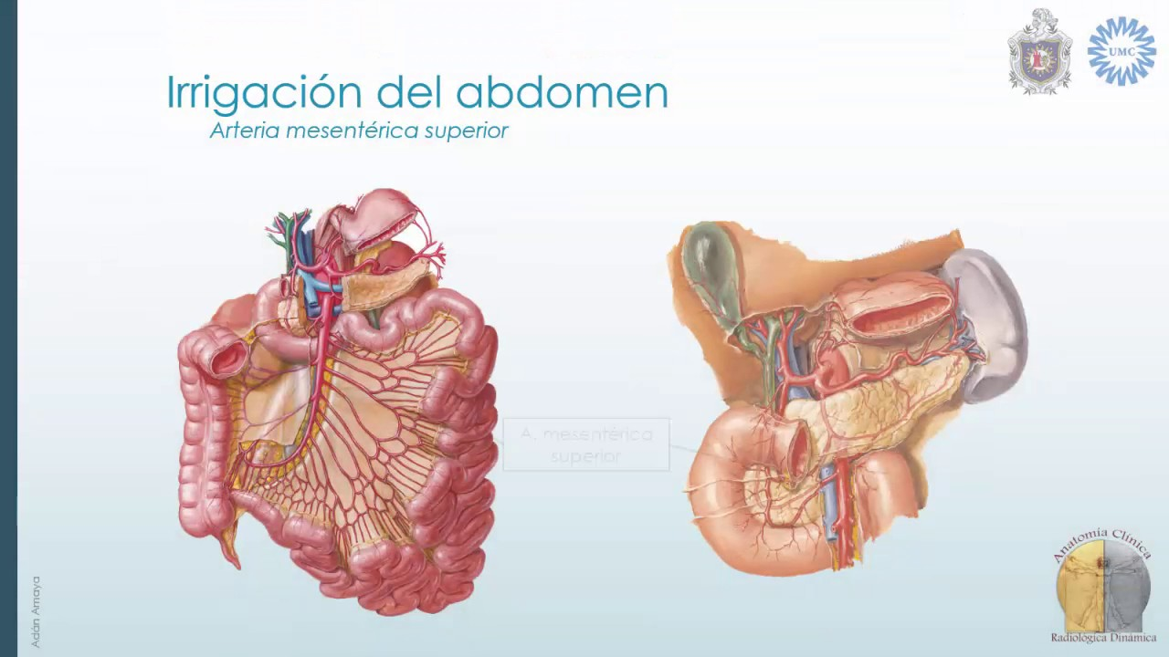 Anatomía radiológica de Abdomen: Vascular - YouTube