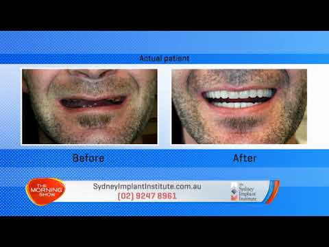 Sydney Implant Institute on The Morning Show