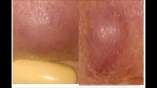 My Acne Story/Review of Epiduo Thumbnail