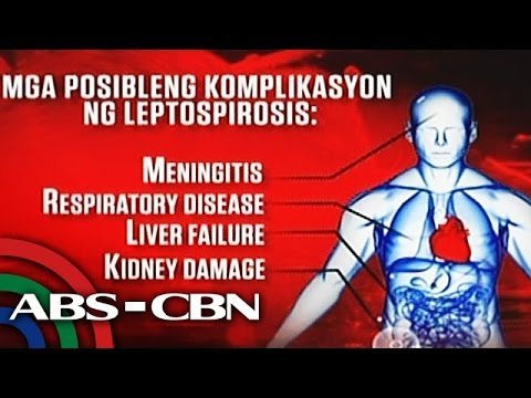 How to prevent the leptospirosis