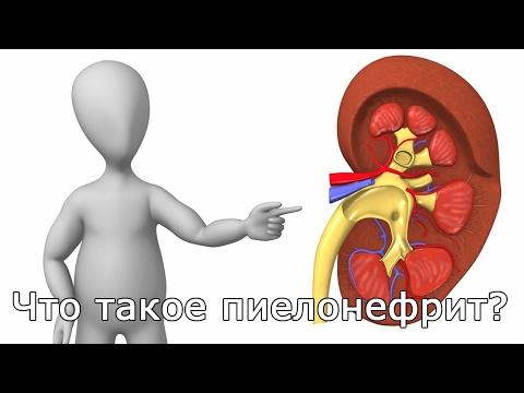 Пиелонефрит: симптомы, лечение. Как лечить пиелонефрит