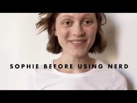 Sophie's Story – Nerd Skincare Acne Treatment