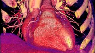 UCSF Radiology: How Well Do CT Scans See Into the Heart?