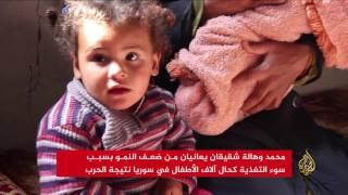 انتشار كبير لأمراض سوء التغذية بين أطفال ريف حمص