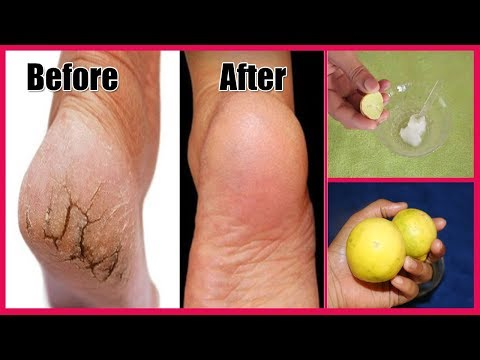 How To Repair Cracked Heels - Ayurved Ke Gharelu Nuskhe