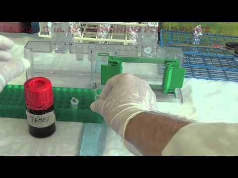 Preventig SDS-PAGE Gels From Leaking Using Stacking Gel
