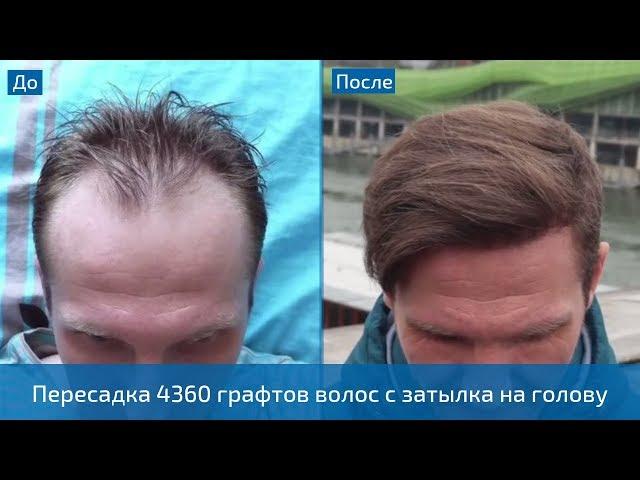 Эффект от пересадки волос спустя года! Пересадка 4360 графтов методом FUE в Турции