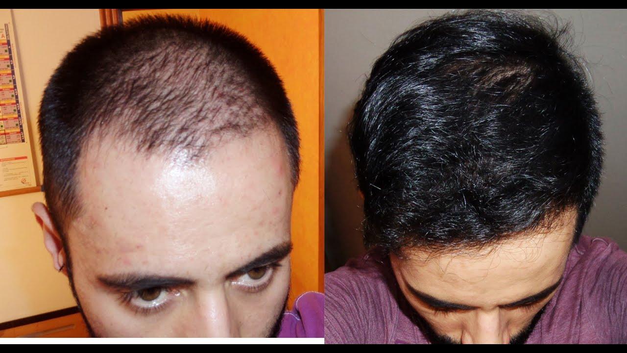 hermoso cabello disfunción eréctil tratamiento con minoxidil